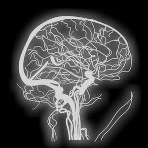 UCLA Online Courses Fundamental Neuroscience for Neuroimaging for UCLA Students in Los Angeles, CA